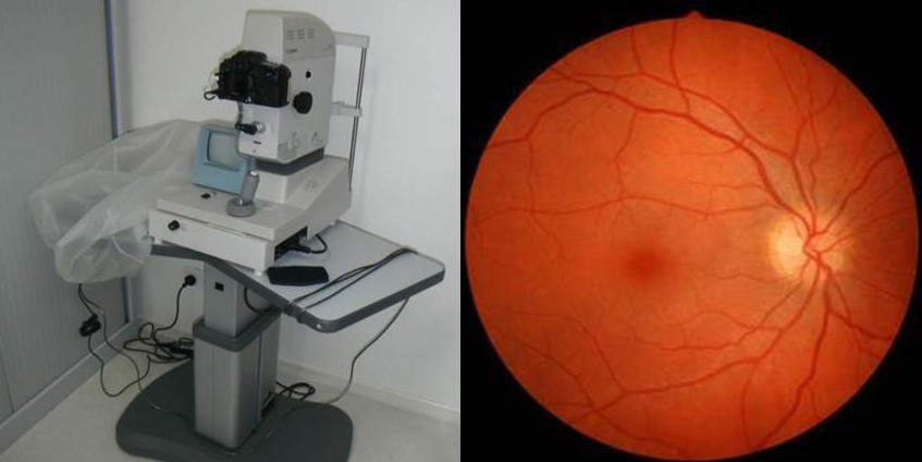 Gp training for diabetic retinopathy screening camera and diabetic retinopathy retinal image