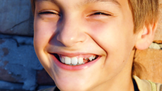 GUS will begin on 1 January 2014 and will replace the Medicare Teen Dental Health Plan.