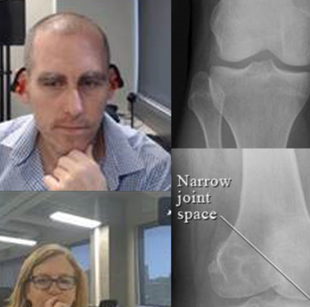 Two doctors on webcam reviewing xrays online